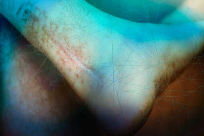 scar-damage-healing